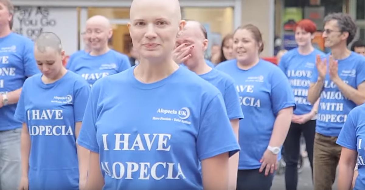I have Alopecia